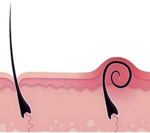 Як усунути врослі волоски?