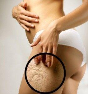 Чому росте волосся на грудях у жінок?