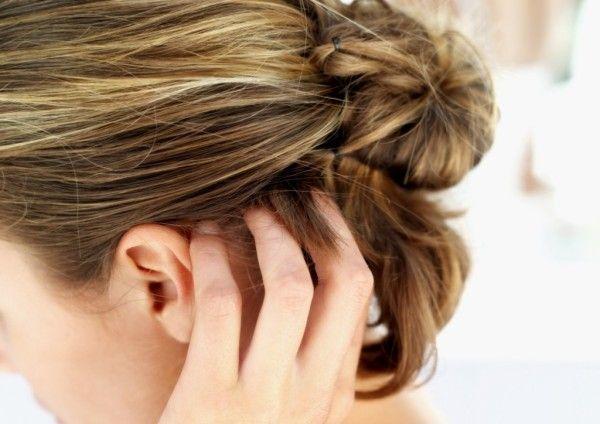 Сверблячка шкіри голови: причини, лікування